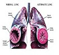 exercise-induced asthma